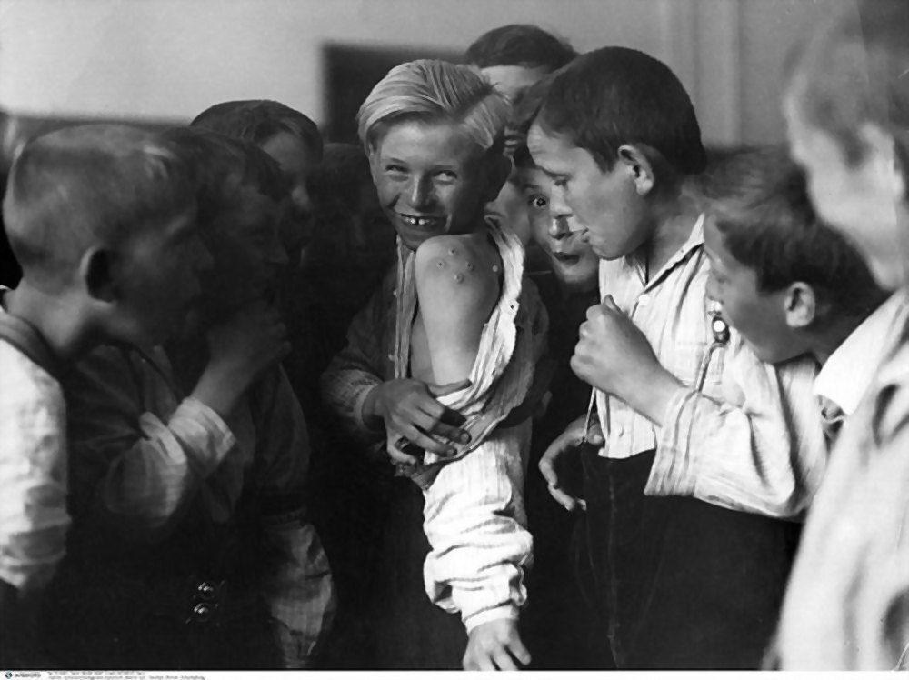 Ssmallpox, immunization, vaccination, boy with characteristic vaccination scars, 1930s
